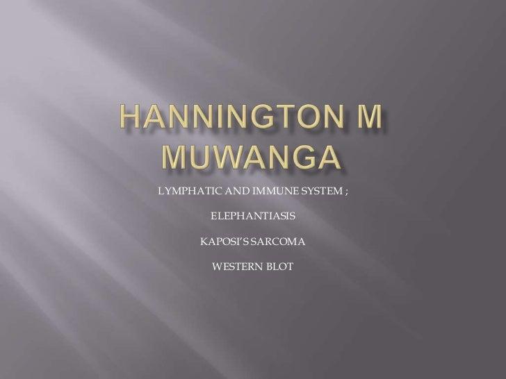 HANNINGTON M MUWANGA<br />LYMPHATIC AND IMMUNE SYSTEM ;<br />ELEPHANTIASIS<br />KAPOSI'S SARCOMA<br />WESTERN BLOT<br />