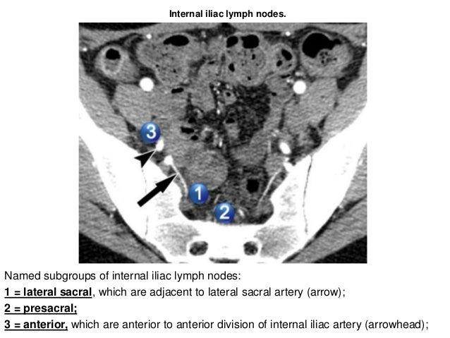 Lymphatics of the pelvis