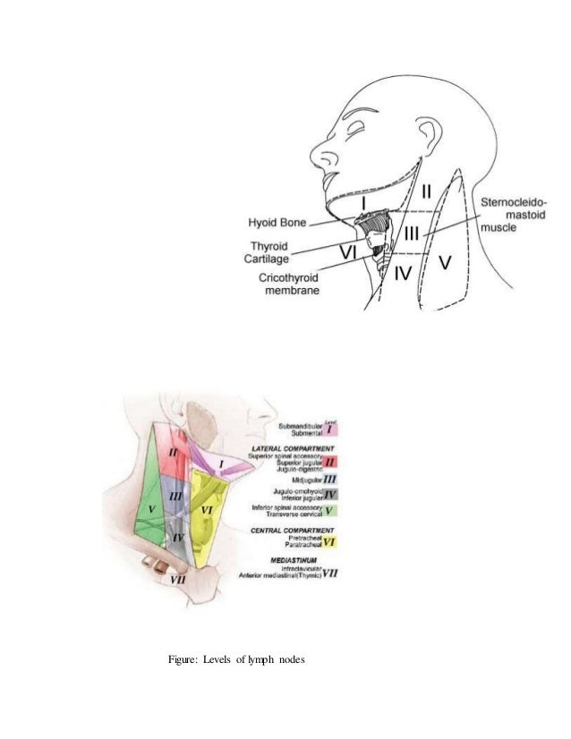 Lymph nodes of head and neck and differential diagnosis of cervica 13 ccuart Gallery