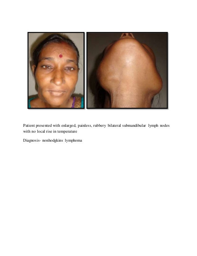 Facial and neck swelling in lung cancer patients