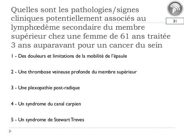 Quelles sont les pathologies/signescliniques potentiellement associés aulymphœdème secondaire du membresupérieur chez une ...
