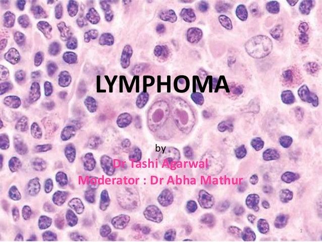 LYMPHOMA by Dr Tashi Agarwal Moderator : Dr Abha Mathur 1