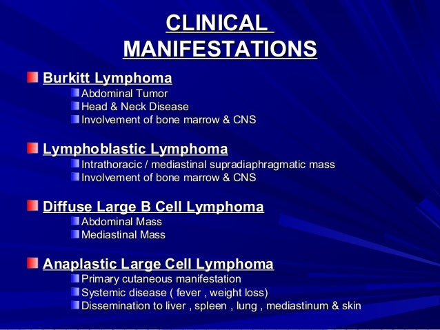 primary cns lymphoma steroids