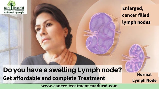 Lymph Node Cancer Treatment In Madurai Best Cancer Centre In Tamil