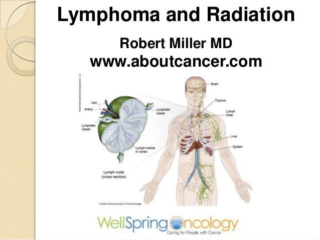 Lymphoma and RadiationRobert Miller MDwww.aboutcancer.com