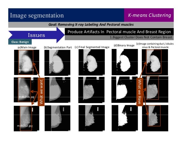 microcalcification detection in digital tomosynthesis mammography The giotto tomo reconstructed 3d images are clearly showing the advantages for structural noise removal increasing lesion conspicuity the benefit of the iterative reconstruction method resulting in an excellent masses and distortion visualization with an overall feel more similar to standard mammograms.