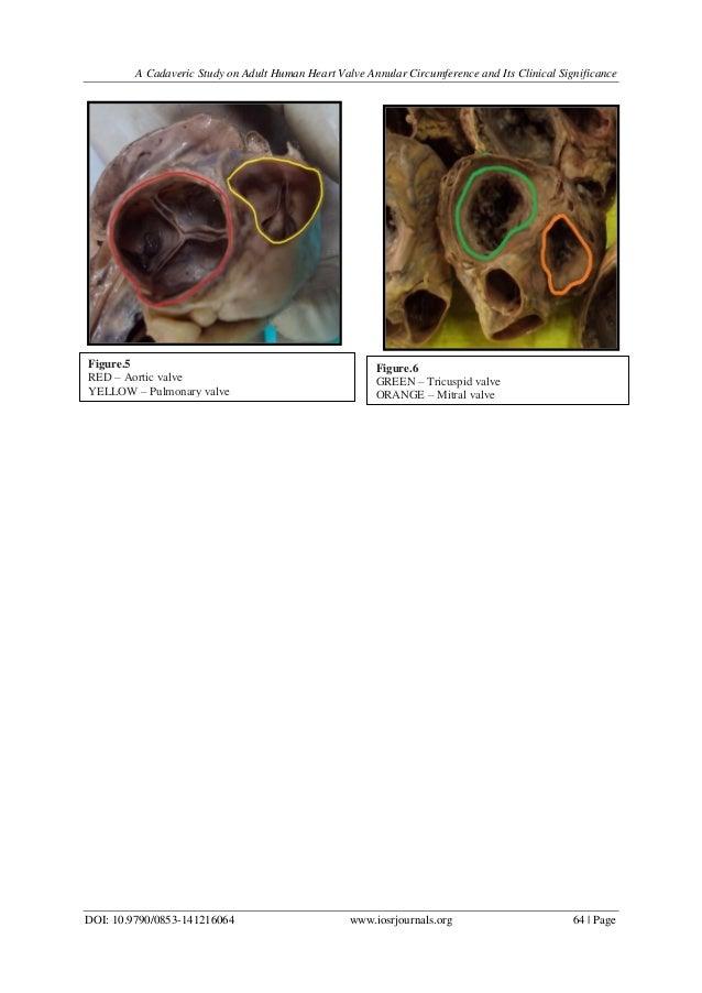 Nett Anatomy Of Heart Valve Fotos - Menschliche Anatomie Bilder ...
