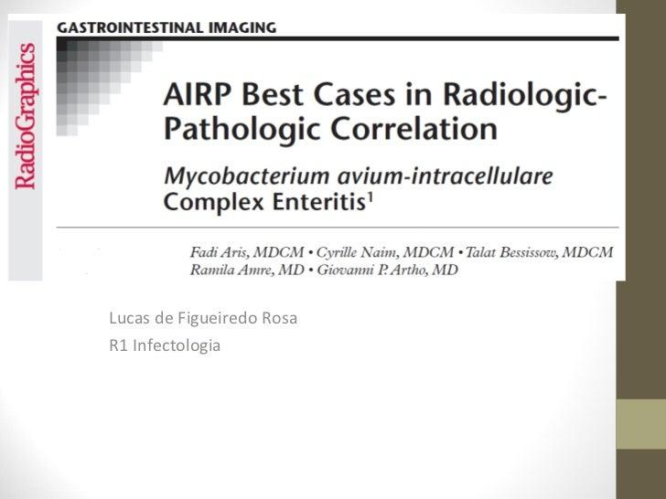 Lucas de Figueiredo RosaR1 Infectologia