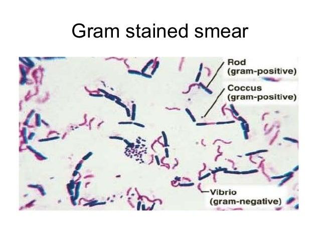 E Coli under the Microscope Types Techniques Gram