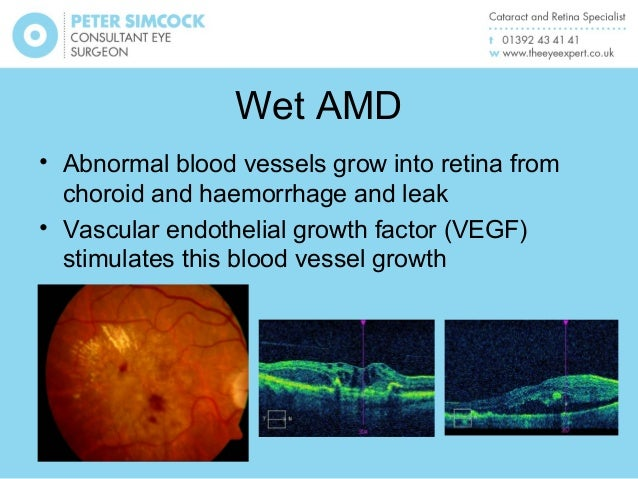 Natural Treatment For Wet Amd