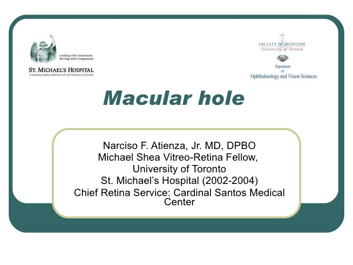 Macular hole Narciso F. Atienza, Jr. MD, DPBO Michael Shea Vitreo-Retina Fellow,  University of Toronto St. Michael's Hosp...