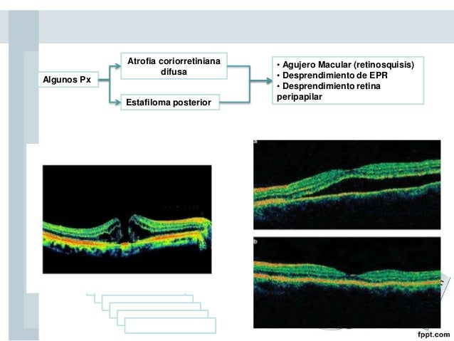 Tratamiento de la MP Ningún tratamiento Consecuencias de MPEfectivo en prevenir • lentes bifocales • lentes para leer • le...