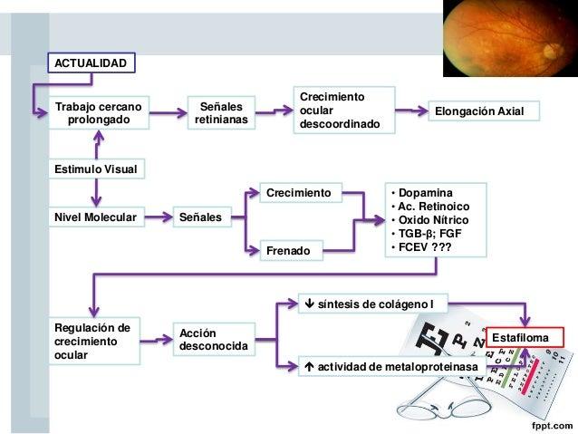 ACTUALIDAD Crecimiento ocular descoordinado Elongación Axial Estimulo Visual Nivel Molecular Crecimiento • Dopamina • Ac. ...