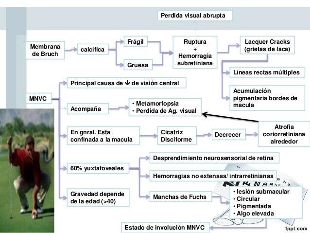 Angiografía con Fluoresceína (AF)