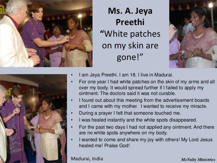 "Ms. A. Jeya Preethi ""White patches on my skin are gone!""• I am Jey..."