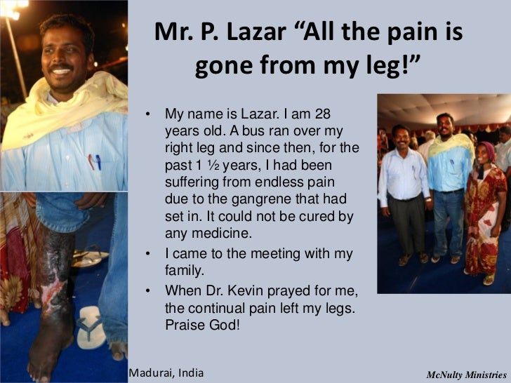 "Mr. P. Lazar ""All the pain is gone from my leg!"" • My name is Lazar. I am 28 years old. A bus ran over my ..."