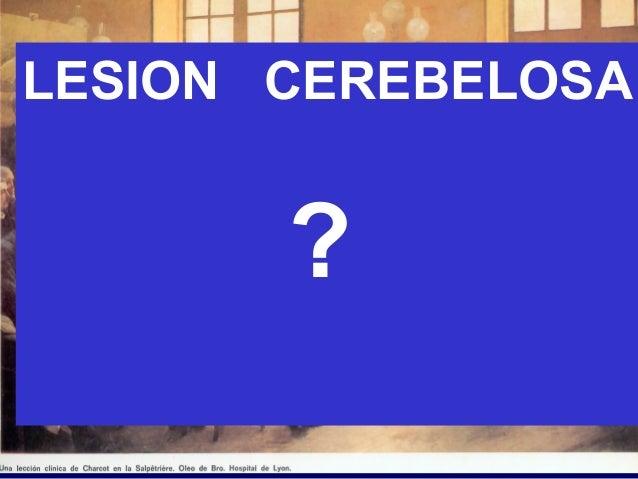 LESION CEREBELOSA ?