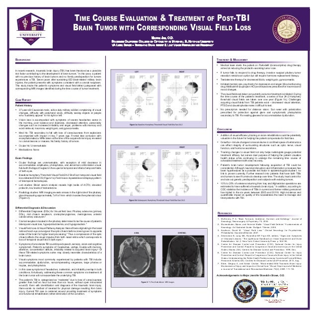 Time Course Evaluation & Treatment of Post-TBI Brain Tumor with Corresponding Visual Field Loss Maggie Jan, O.D. Southern ...