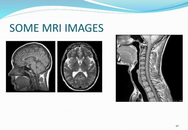 SOME MRI IMAGES 40