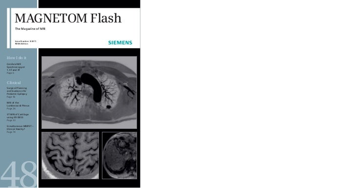 MAGNETOM Flash       The Magazine of MRI       Issue Number 3/2011       RSNA EditionHow I do itCerebral MRSpectroscopy at...