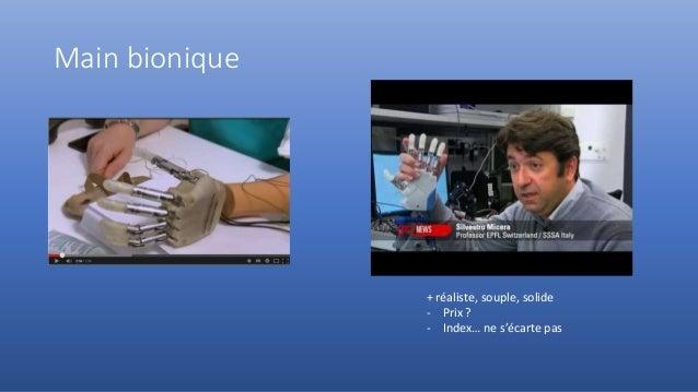 Main bionique + réaliste, souple, solide - Prix ? - Index… ne s'écarte pas