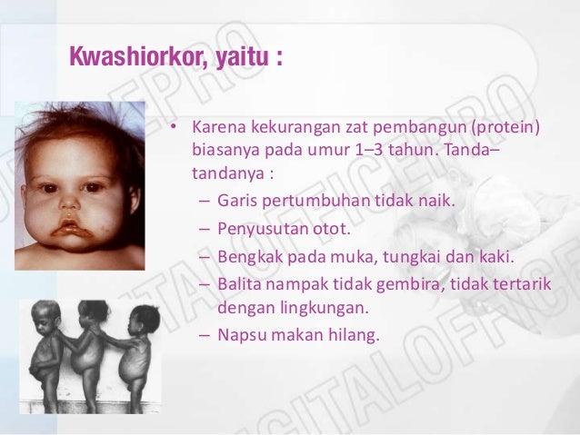 16 Buah Penambah Berat Badan Bayi 9 Bulan Lebih