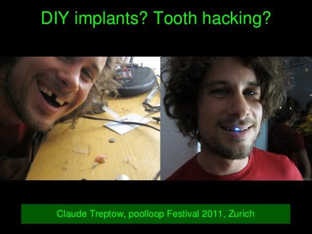 DIYimplants?Toothhacking? ClaudeTreptow,poolloopFestival2011,Zurich