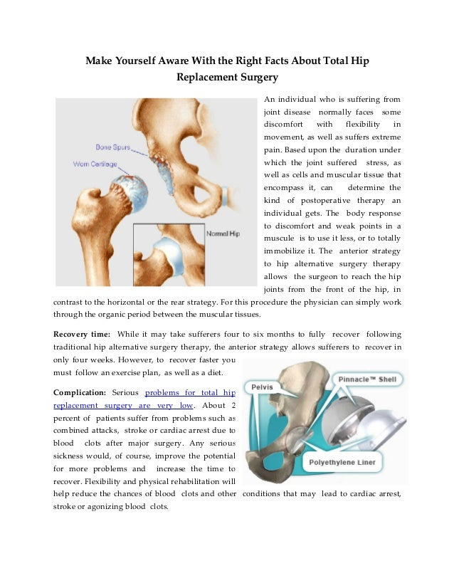 Hip Replacement Surgery Recovery Time Frame - Page 6 - Frame Design ...