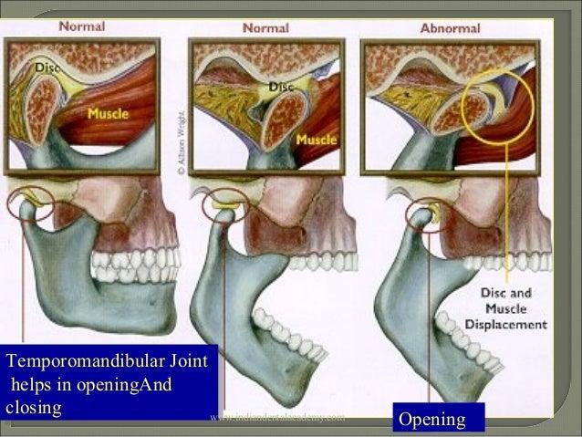 Tmj Disorders General Orthodontics