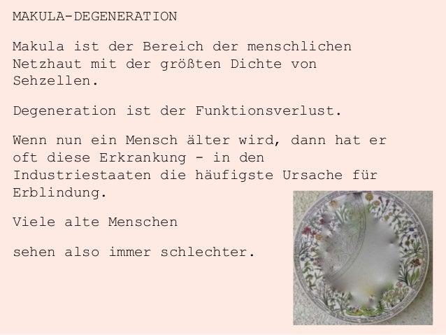MAKULA-DEGENERATION Makula ist der Bereich der menschlichen Netzhaut mit der größten Dichte von Sehzellen. Degeneration is...