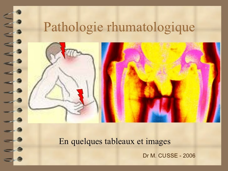 Pathologie rhumatologique En quelques tableaux et images Dr M. CUSSE - 2006