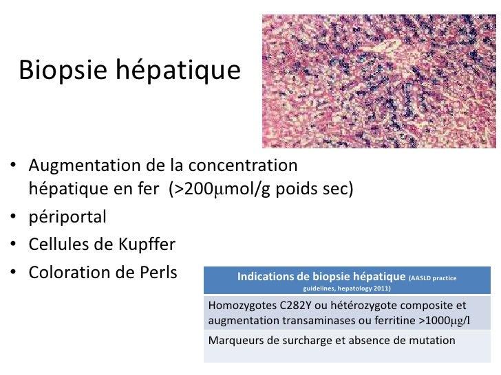 Biopsie hépatique• Augmentation de la concentration  hépatique en fer (>200μmol/g poids sec)• périportal• Cellules de Kupf...