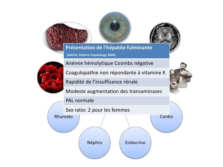 Présentation de l'hépatite fulminante    (AASLD, Roberts hepatology 2008)    Anémie hémolytique Coombs négative    Coagulo...