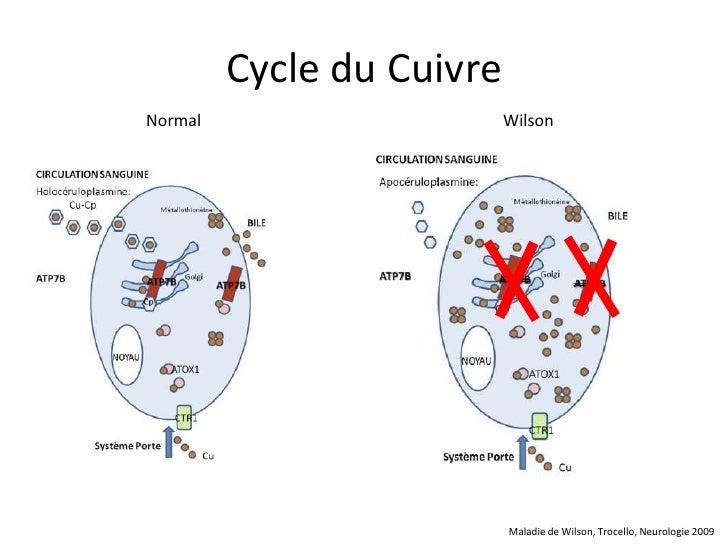 Cycle du CuivreNormal                     Wilson                           Maladie de Wilson, Trocello, Neurologie 2009