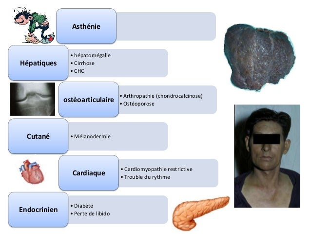 Asthénie                • hépatomégalieHépatiques      • Cirrhose                • CHC                                    ...