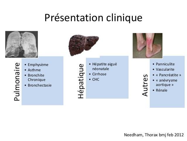 Présentation clinique                                           • Hépatite aiguë                    • PanniculitePulmonair...