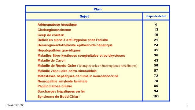 Maladies hépatiques rares et transplantation hépatique Slide 2