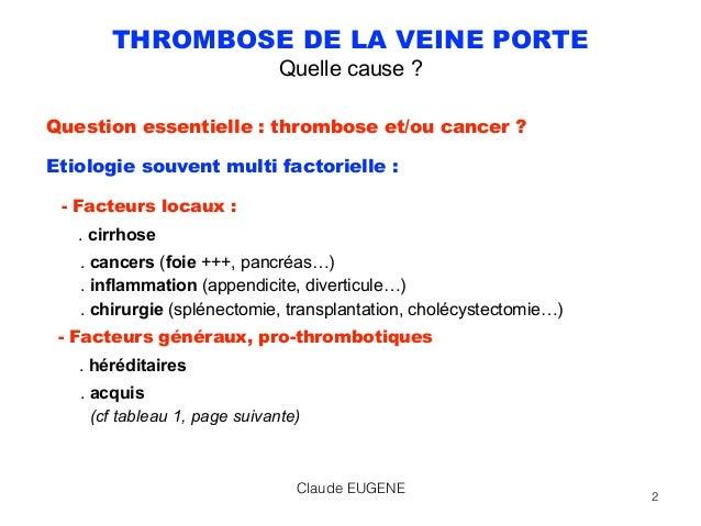 Maladies vasculaires du foie Slide 2