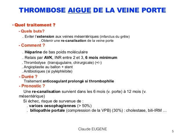 Maladies vasculaires du foie - Thrombose de la veine porte ...