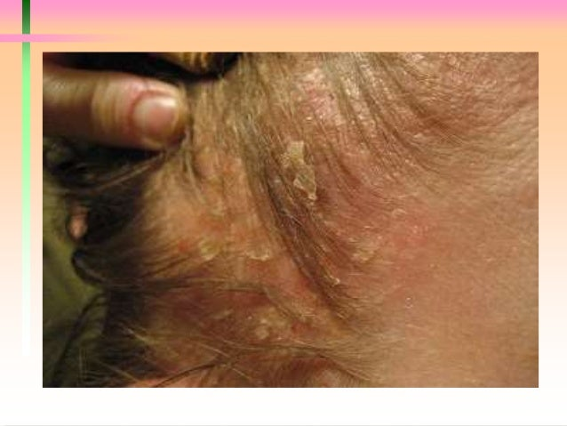 how to get rid of malassezia on scalp