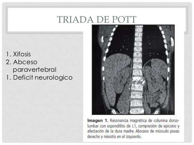 • Antecedentes familiares.            • Contacto directo con pacientes conAnamnesis     TBC.            • Condiciones de v...