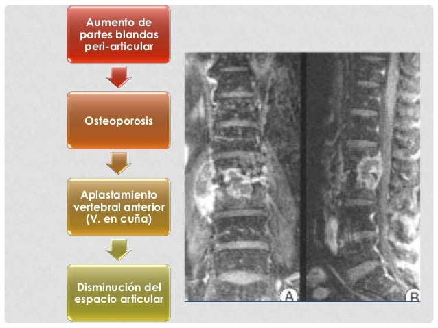 Tratamiento quirúrgico                                         Objetivos:                                    Estabilizació...