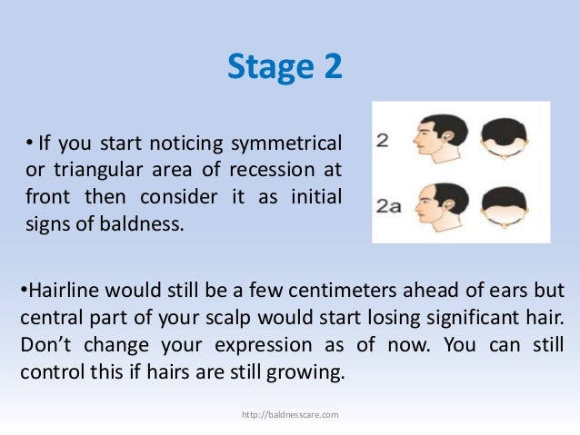 Male baldness cure – treatments for various stages