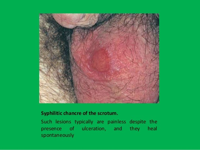 Urinary tract infection men sexually transmitted