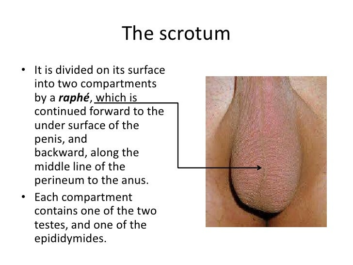 Swelling between anus and scrotum