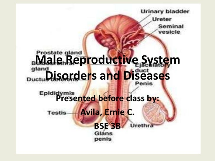 male reproductive disorders list