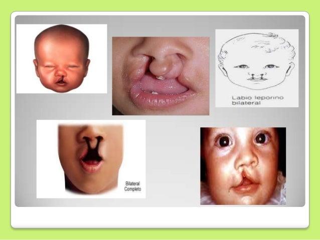 malformaciones congenitas cara nariz y boca