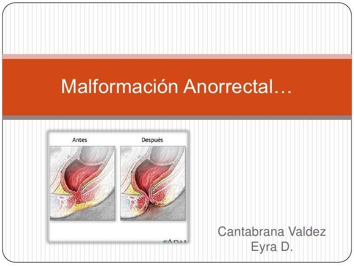 Malformación Anorrectal…                Cantabrana Valdez                     Eyra D.