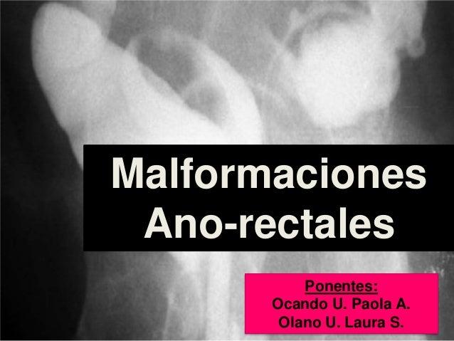 Malformaciones Ano-rectales Ponentes: Ocando U. Paola A. Olano U. Laura S.