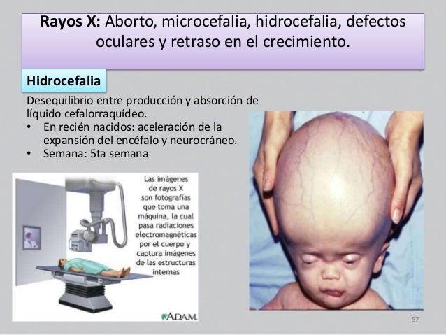 malformaciones embriologia
